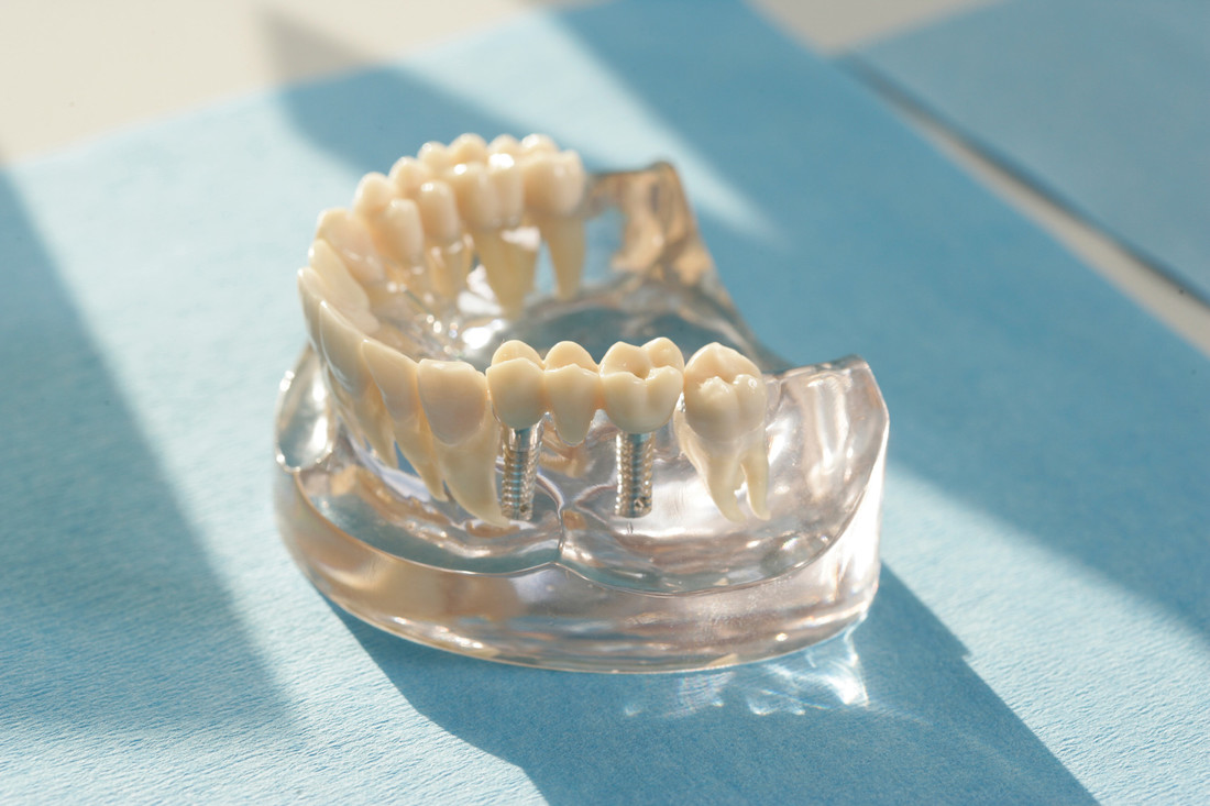 """Rund 450.000 künstliche Zahnwurzeln setzen Zahnärzte jedes Jahr in Deutschland ein. Sie dienen als Basis für einzelne künstliche Zähne oder als Anker für Brücken, festsitzende oder herausnehmbare Prothesen. Implantatgetragener Zahnersatz, kommt der Natur am nächsten, deshalb fühlen sich die Patienten damit auch sehr wohl.  Die Verwendung dieses Bildes ist nur für redaktionelle Zwecke und ausschließlich in Bezug auf das Thema Zahnmedizin gestattet. Die Bearbeitung des Bildes ist nicht erlaubt, mit Ausnahme der Verkleinerung oder Vergrößerung sowie der technischen Aufbereitung zum Zweck der optimalen Vervielfältigung. Die Weitergabe dieses Bildes an Dritte und insbesondere der honorarpflichtige Vertrieb/die Speicherung in Bilddatenbanken ist untersagt. Der Abdruck ist ausschließlich unter Nennung der Quellenangabe: """"proDente e.V."""" honorarfrei. . .Eine reprofähige jpg-Datei ist unter www.prodente.de im Pressezentrum abrufbar.  Erzeugt mit Caption Writer II."""