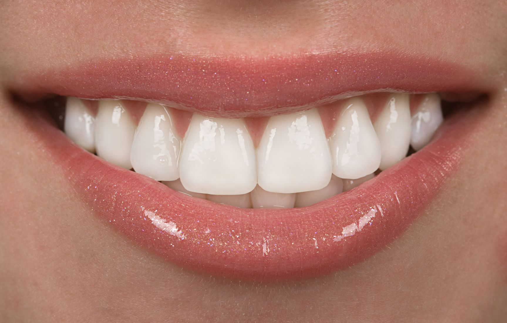 strahlende, gerade Zähne durch Veneers